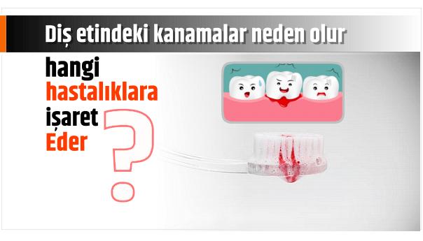 Photo of Diş etindeki kanamalar neden olur ve hangi hastalıklara işaret eder.?