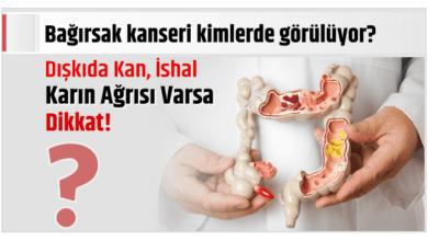 Photo of Bağırsak kanseri kimlerde görülüyor? Dışkıda Kan, İshal Karın Ağrısı Varsa Dikkat!