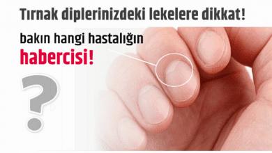 Photo of Tırnak diplerinizdeki lekelere dikkat! bakın hangi hastalığın belirtisi!