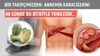 Photo of Annemin Karaciğerini Sadece 40 Günde Bu Bitkiyle Yeniledik..