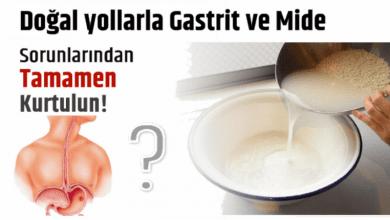 Photo of Doğal yoldan Gastrit ve Mide Sorunlarından Tamamen Kurtulun!