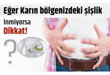 Photo of Karın Bölgenizdeki Şişlik Sürekli ve inmiyorsa dikkat!
