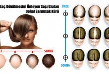 Photo of Saç Dökülmesini Önleyen ve Saçı Uzatan Doğal Sarımsak Kürü