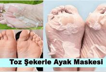 Photo of Çatlayan Kaşınan ve Ağrıyan Ayaklarınızı Toz Şeker Maskesi ile Rahatlatın