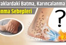 Photo of Ayaklardaki Batma, Karıncalanma ve Yanma Sebepleri