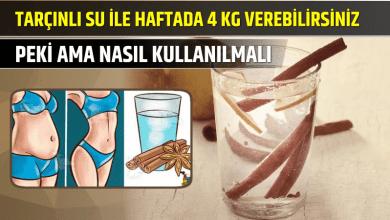 Photo of Tarçınlı Su ile Haftada 4 Kilo Verebilirsiniz, Peki Ama Nasıl Kullanılmalı?