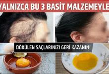 Photo of Yalnızca bu 3 Basit Malzemeyle Dökülen Saçlarınızı Geri Kazanın!